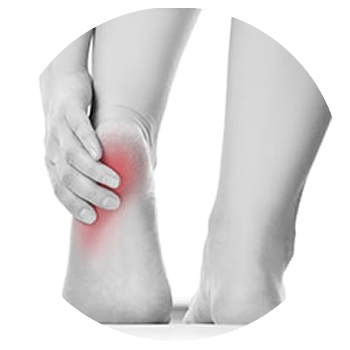 Heel Pain treatment in Cleveland Ohio